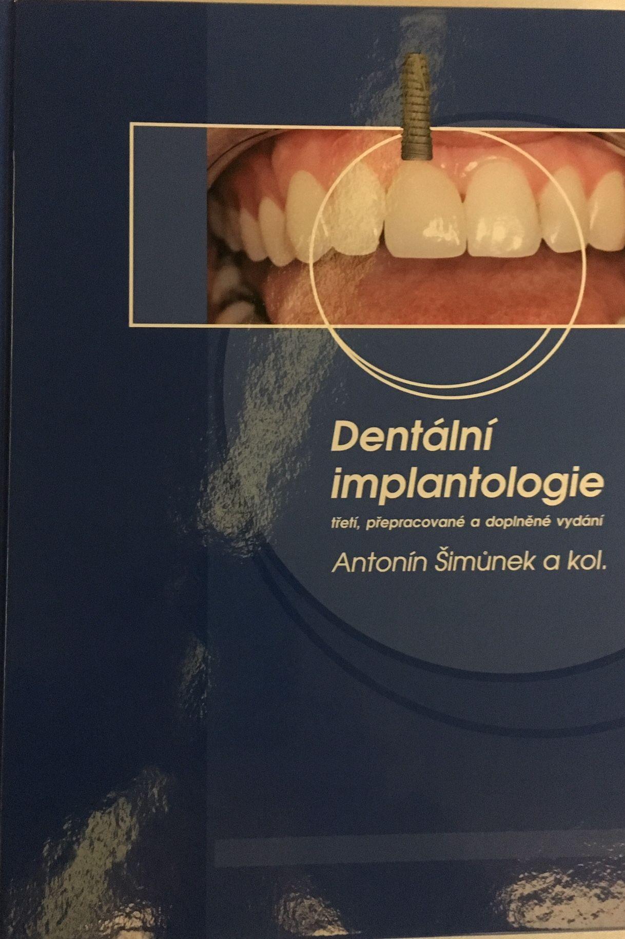 3rd Edition of Dental Implantology encyclopaedia Prof.Antonín Šimůnek and team of authors | 495 pages | Publishing ARTILIS ©2017 UIS Impladenta Europe page 35 | Tekscan - occlusion - page 227 | Křest knihy Dentální implantologie | 3. přepracované a doplněné vydání | Prof.Antonín Šimůnek a kol.| Nakladatelství ARTILIS - vydavatelka - Ing.Skůrova | ISBN 978-80-906794-0-5