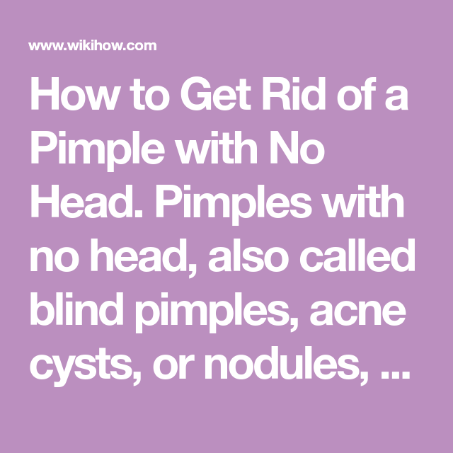 How To Get Rid Of A Pimple With No Head Nodule Acne Pimples Painful Pimple