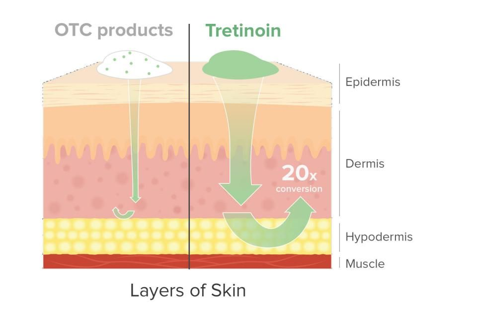 Tretinoin Is Stronger Works Faster And Is More Powerful Than Any Over The Counter Retinoid In Fact The Lowest Tretinoin Tretinoin Before And After Retinoid