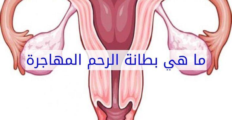 ما هي بطانة الرحم المهاجرة وأسبابها وأعراضها وعلاجها