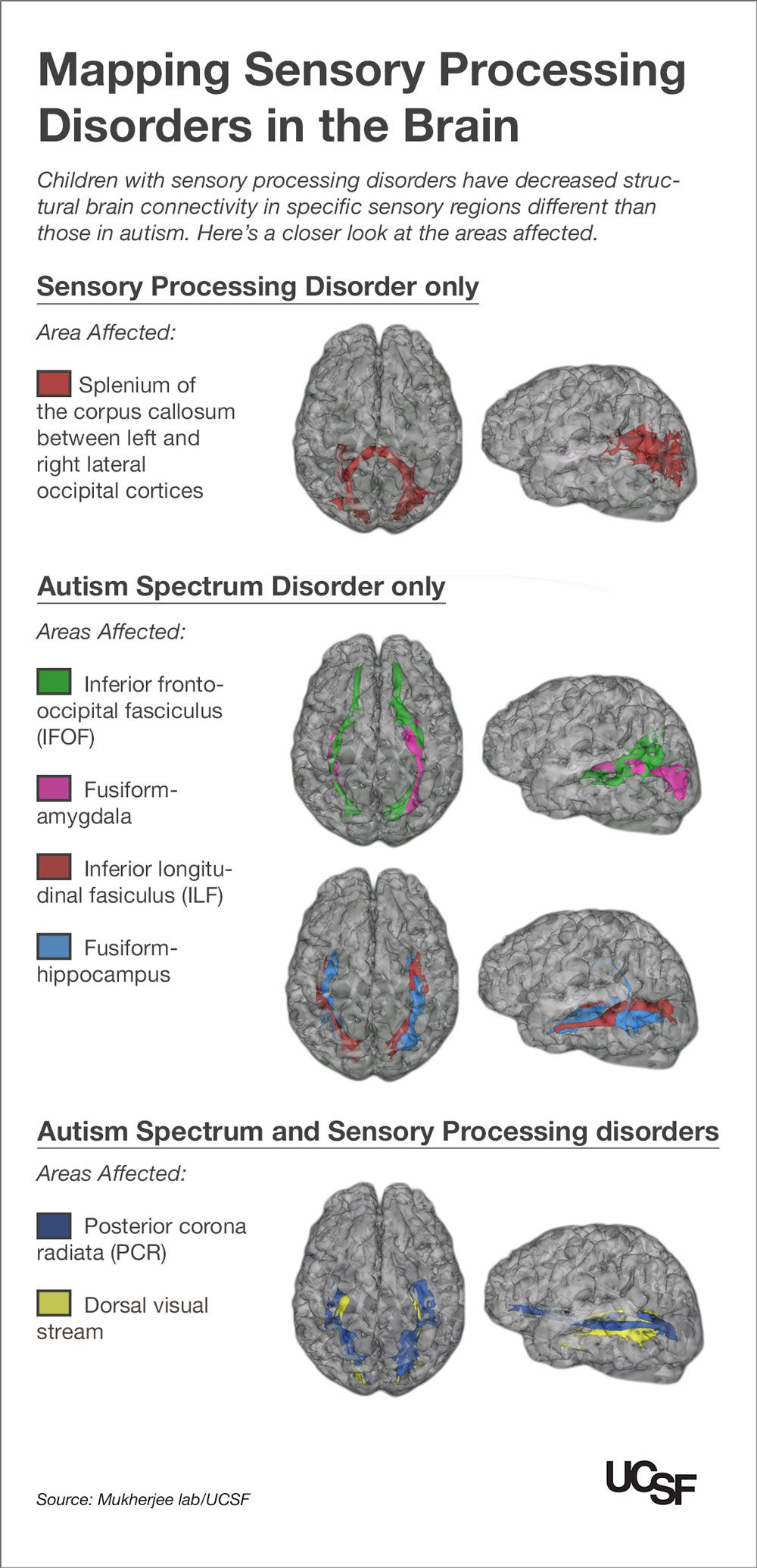 Why Autism Is Different In Brains Of >> Kids With Autism Sensory Processing Disorders Show Brain Wiring
