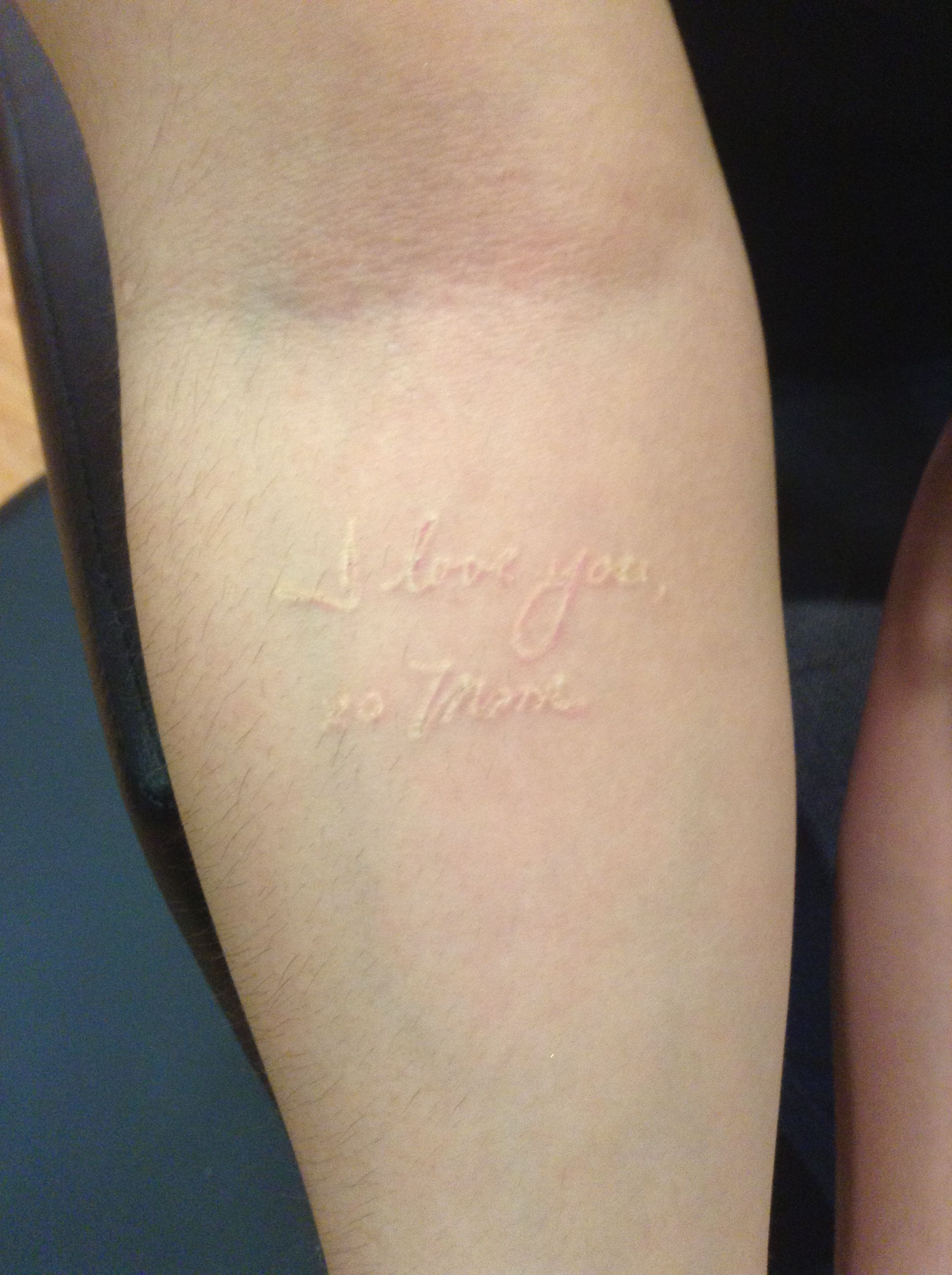 When Is Tattoo Healed: This Is My Tattoo, Totally Healed. He Did White Ink With A