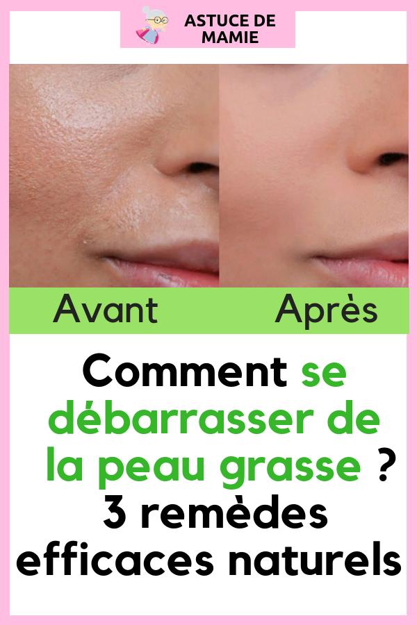 remede naturel pour peau grasse
