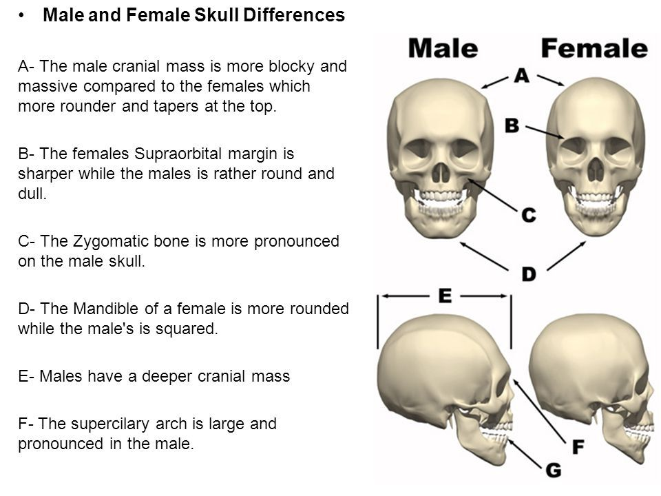 transsexual anatomical differences from women
