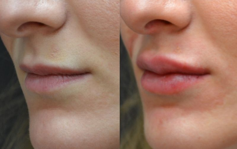 Before and after pictures of Restylane lip fillers in ...