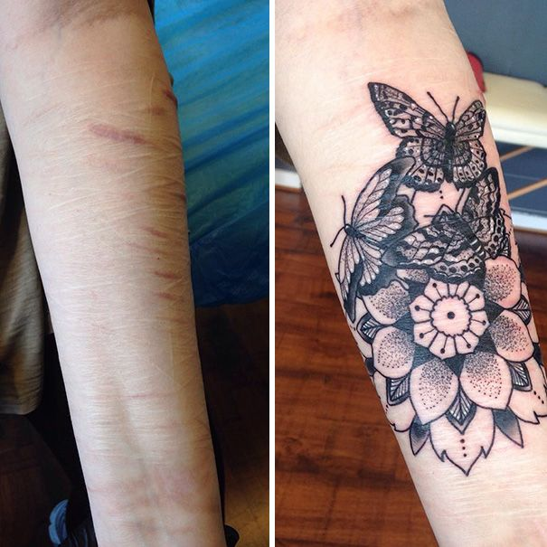 10+ Amazing Tattoos That Turn Scars Into Works Of Art | Amazing ...