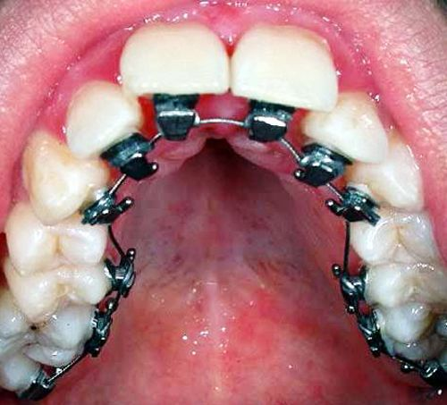 Incognito Lingual Braces If You Want It I Can Do It Dental Braces Dental Teeth Braces