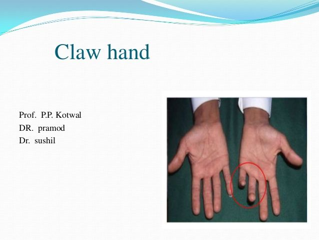 Ape Hand Deformity Splint On Picterest Signs Hands Company Logo