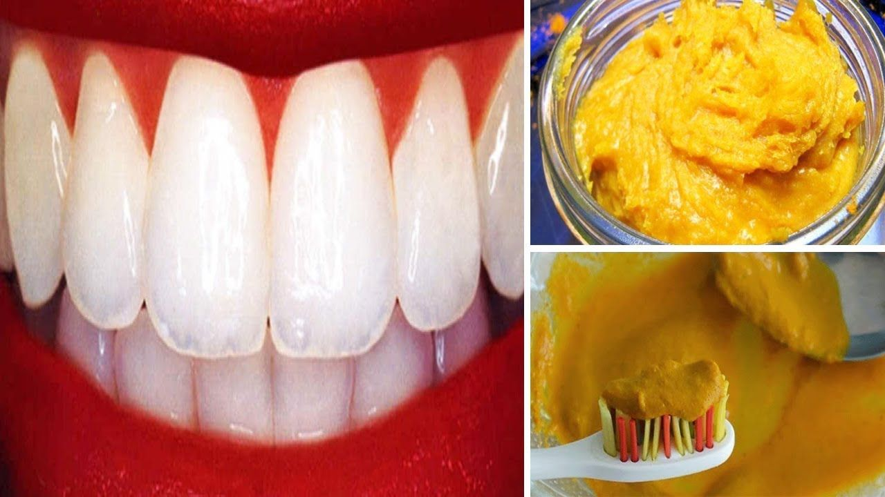 How to naturally whiten your teeth at home with turmeric