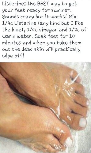 foot bath to remove dead skin