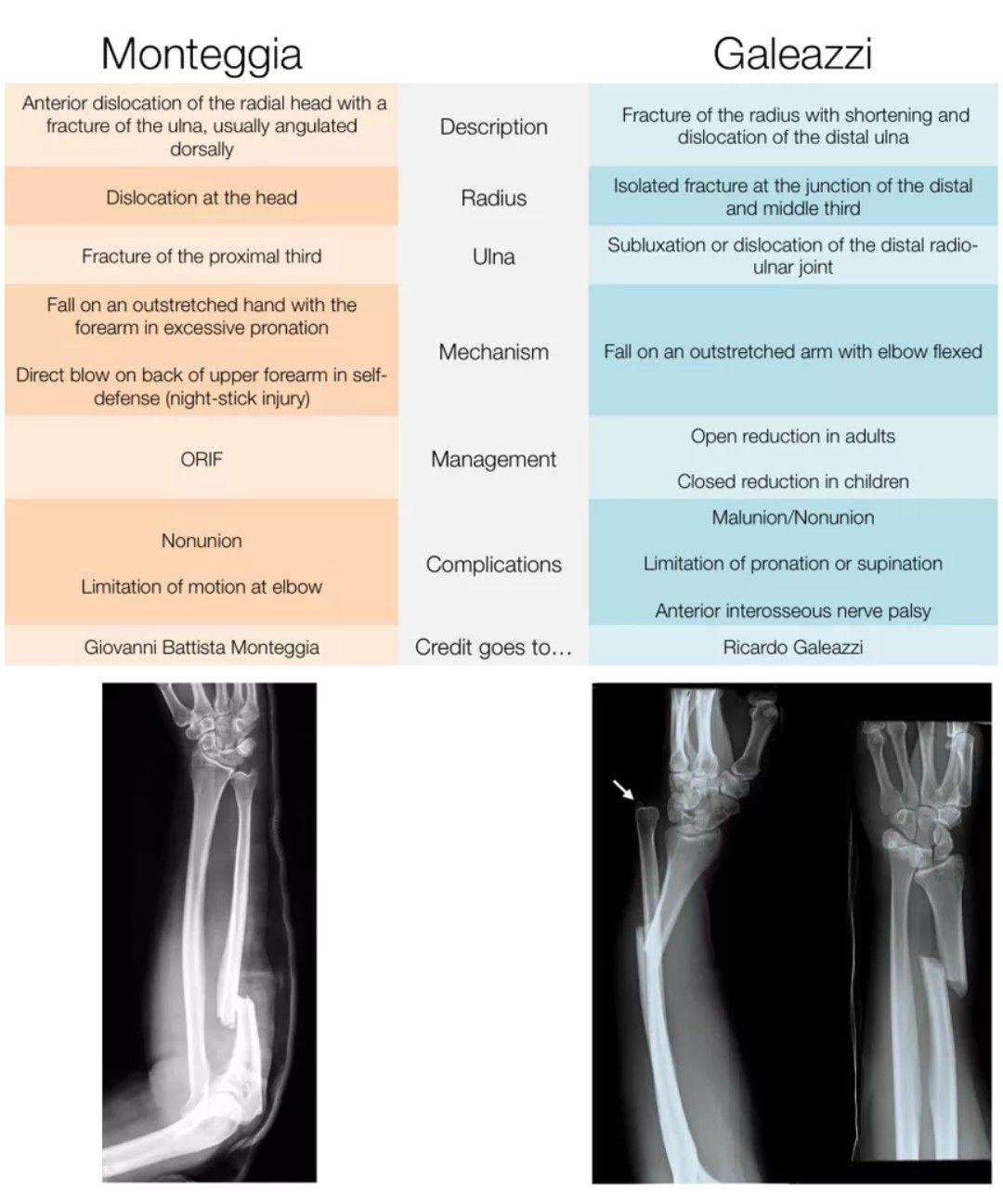 Monteggia vs Galeazzi fracture 【Note ORIF in both