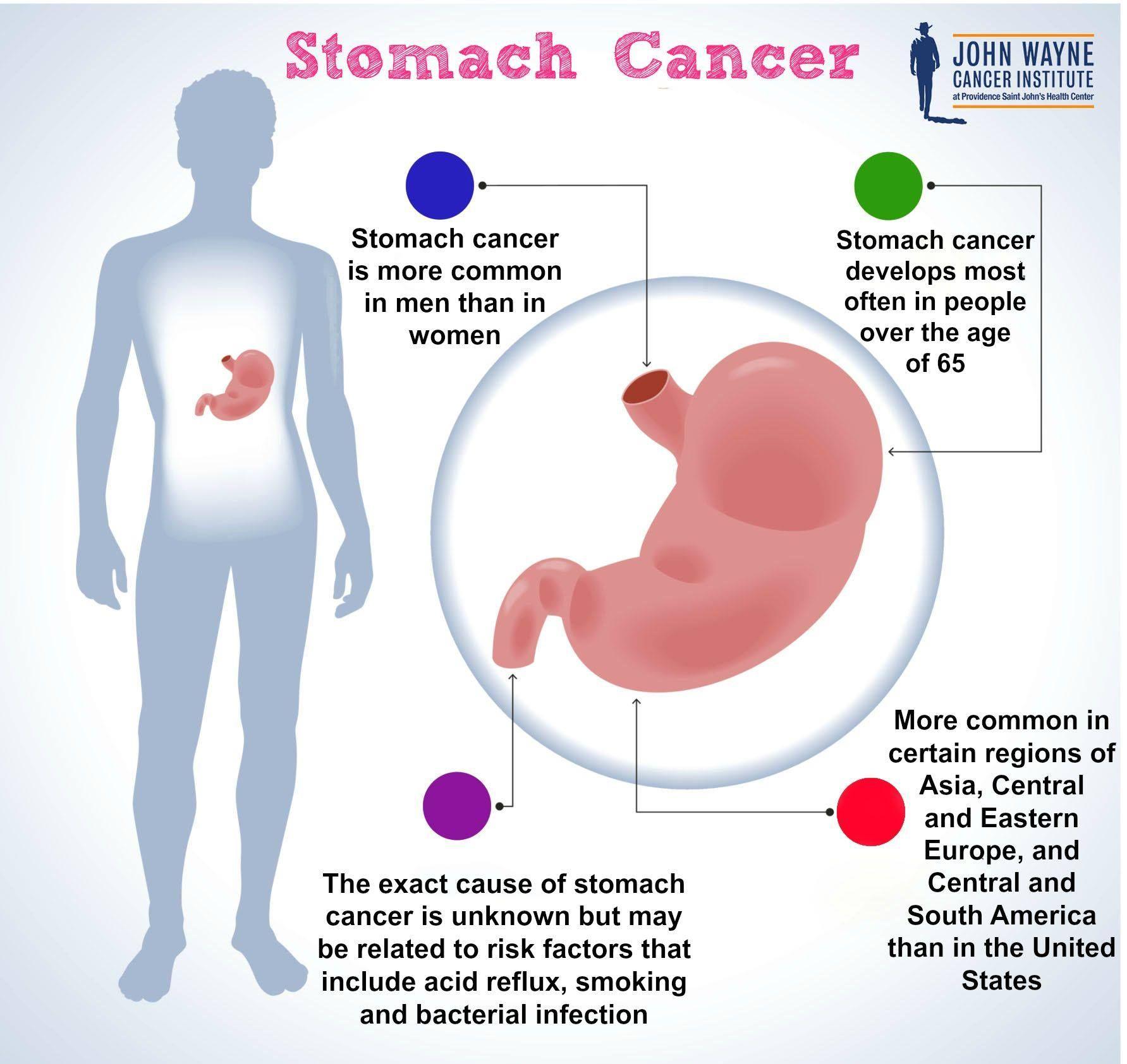 Pin by John Wayne on John Wayne Cancer Foundation | Stomach