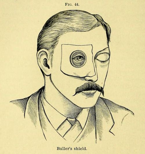 Dr. Buller's shield, for use as protection on the unafflicted eye from germ spread while the other, infected eye is treated for conjunctivitis. From Edward Nettleship's Diseases of the Eye, 1900.