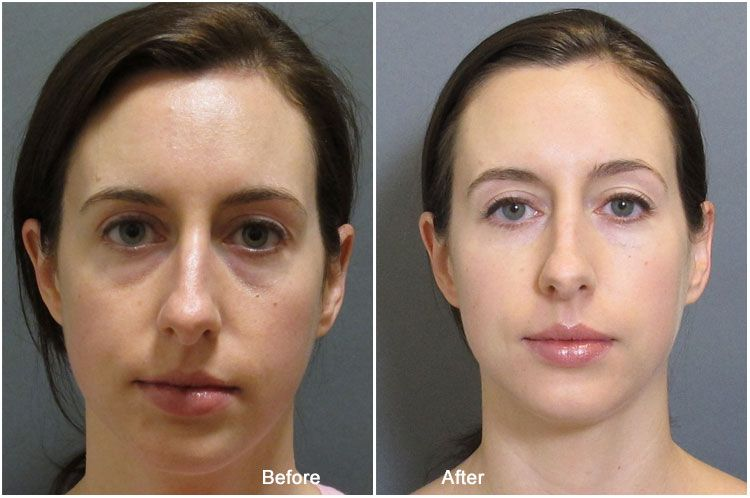 Before After: juvederm under eye before and after