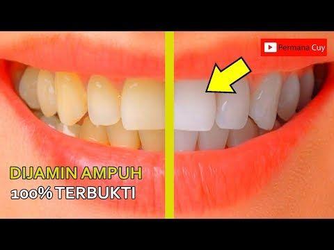 Cara Ampuh Memutihkan Gigi Kuning Dalam 3 Menit Youtube Tips