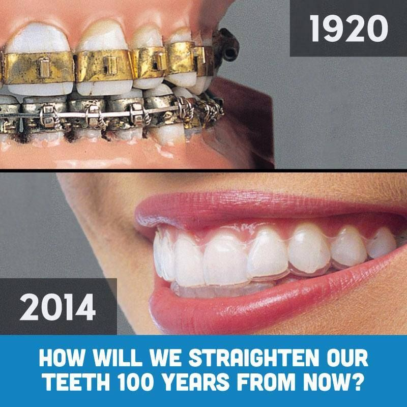 Look How Far We Ve Gone Yay For Advances In Technology Lookswoow Provide Both Traditional Braces Cosmetic Braces Traditional Braces Oral Health Education