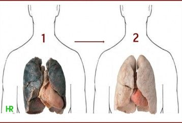 smokers-should-read-this-these-4-ingredients-can-cleanse-your-lungs-from-nicotine-and-tar