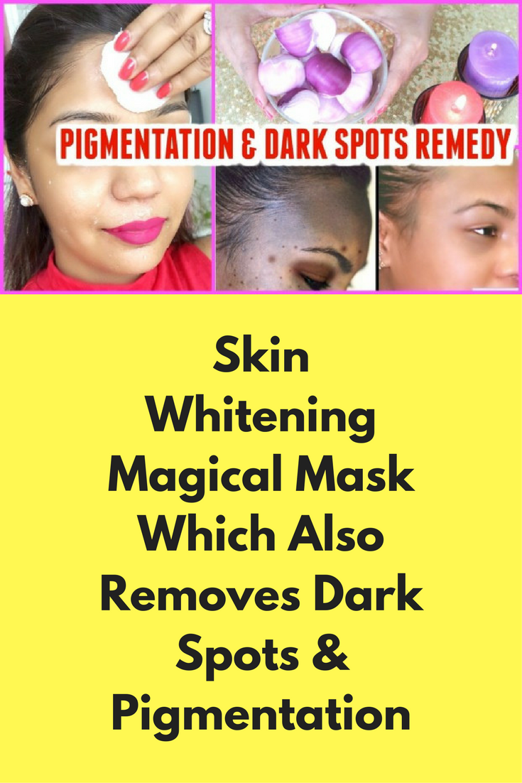 Skin Whitening Magical Mask Which Also Removes Dark Spots