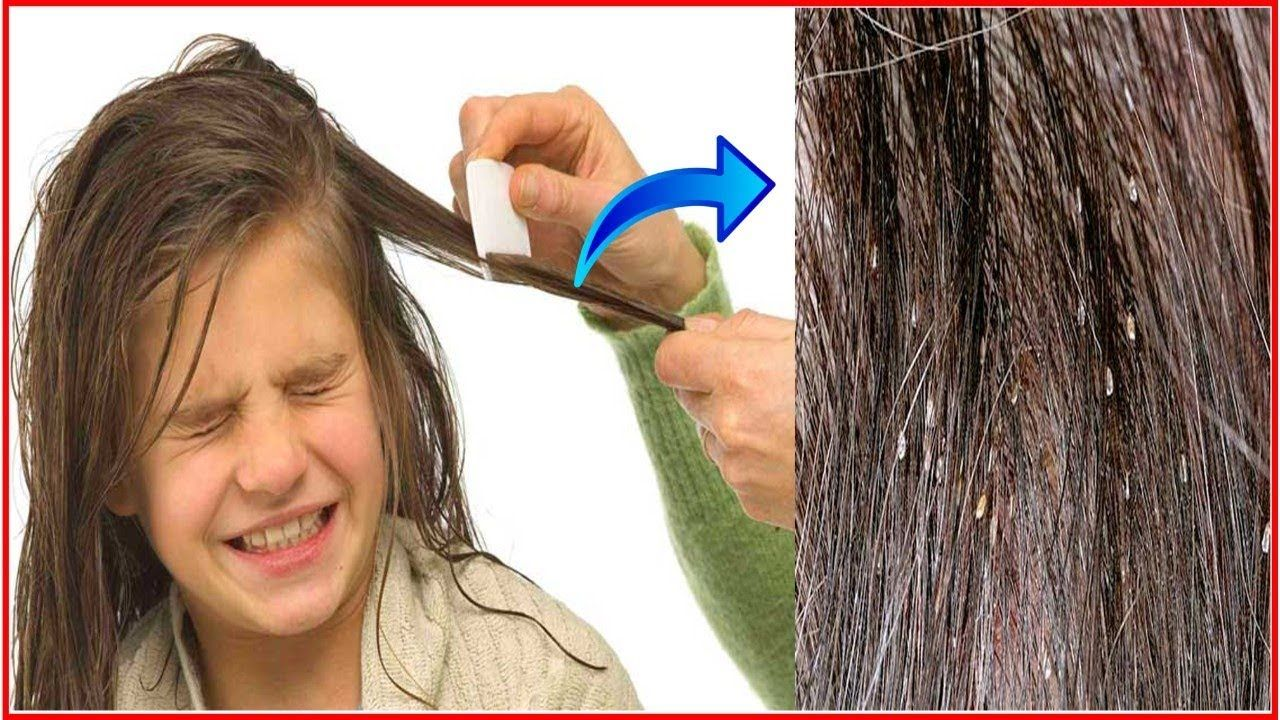 Forum on this topic: How to Remove Nits from Hair, how-to-remove-nits-from-hair/