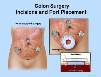 Surgery For Ulcerative Colitis Http Www Stemcellstcm Com Surgery