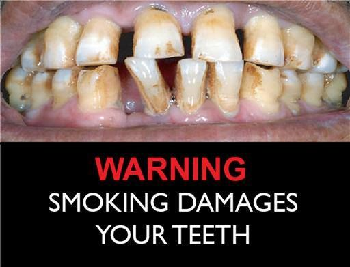Pin By Orange Dental On Dental Quotes Quit Smoking Tips