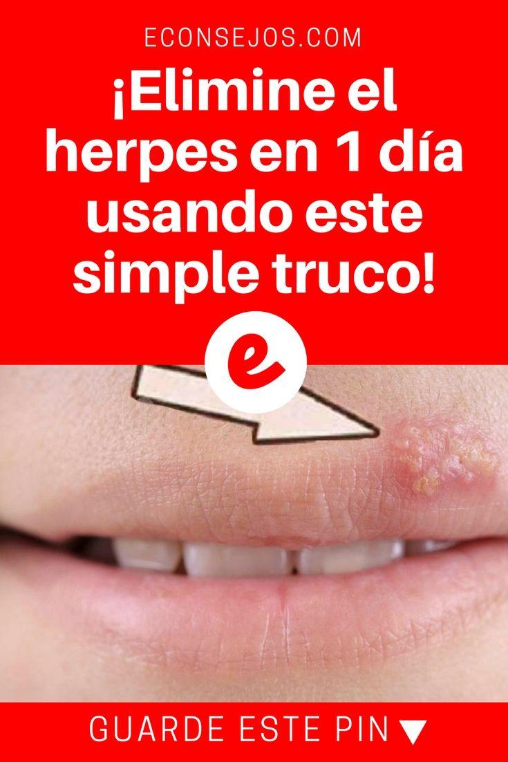 Remedios para curar los herpes labiales