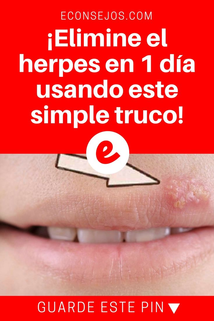 antiviral behandling herpes