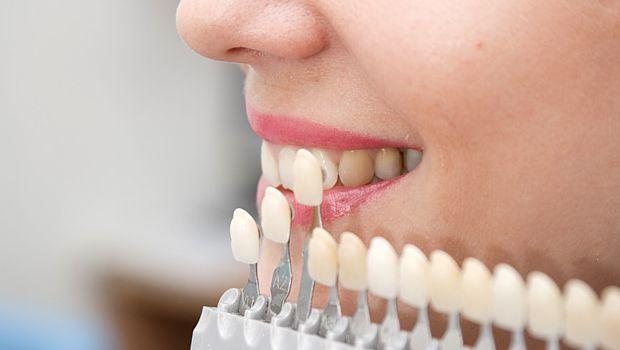 Zahnfarben 🥇Zahnversicherung für