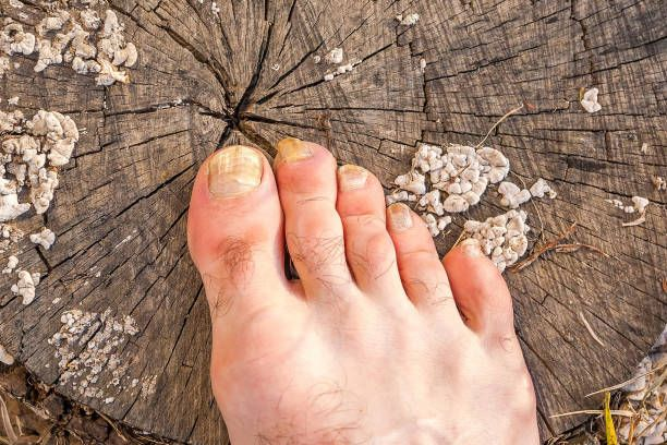 How To Cure Toenail Fungus With Apple Cider Vinegar-Black Toenail ...