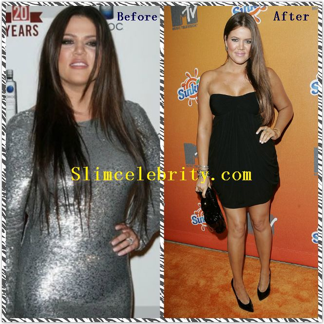 After diet loss surgery weight
