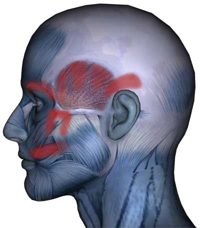 Temporalis muscle pain pattern   Health   Pinterest