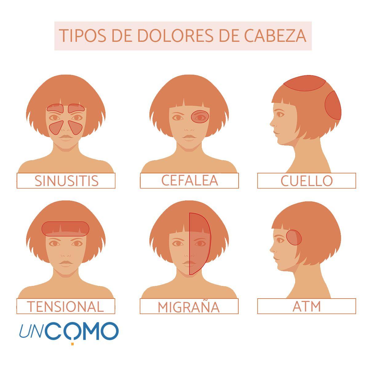 Tipos De Dolores De Cabeza Cada Parte De Nuestro Cráneo Puede Provocar Un Dolor De Cabeza Distinto Tipos De Dolor De Cabeza Dolores De Cabeza Dolor De Cabeza