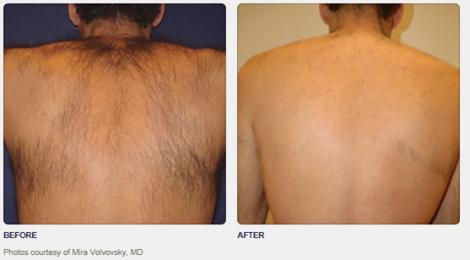 http://www.hbhealthofknightsbridge.co.uk/body/painless-laser-hair-removal/