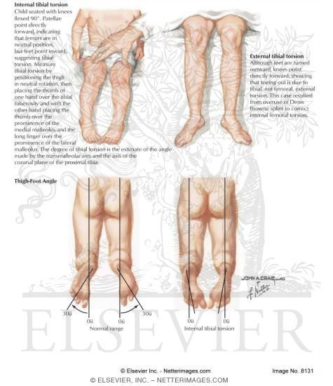 how to draw pidgeon toe position