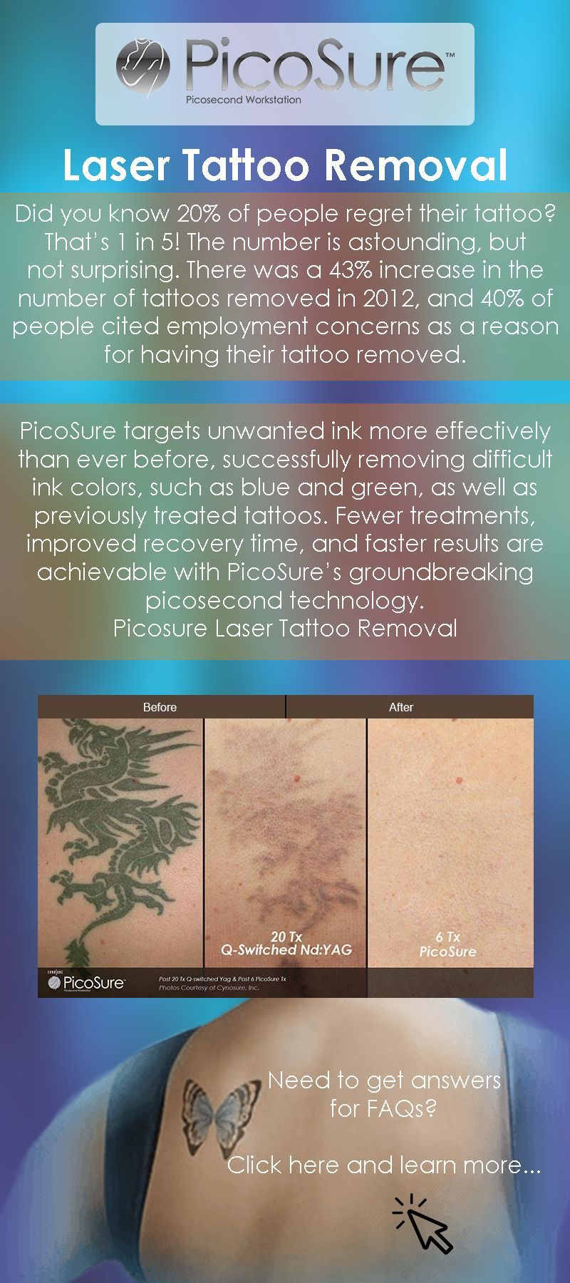 pico laser tattoo removal aftercare