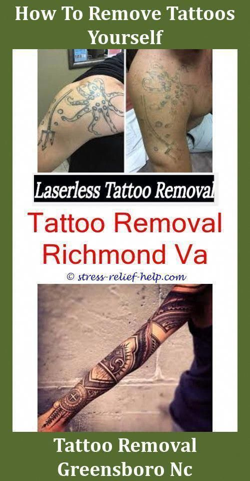 Black Tattoo Removal Does Tca Tattoo Removal Work Foot Tattoo Removal Before And After Does Laser Re… Black Tattoo Removal Does Tca Tattoo Removal W…