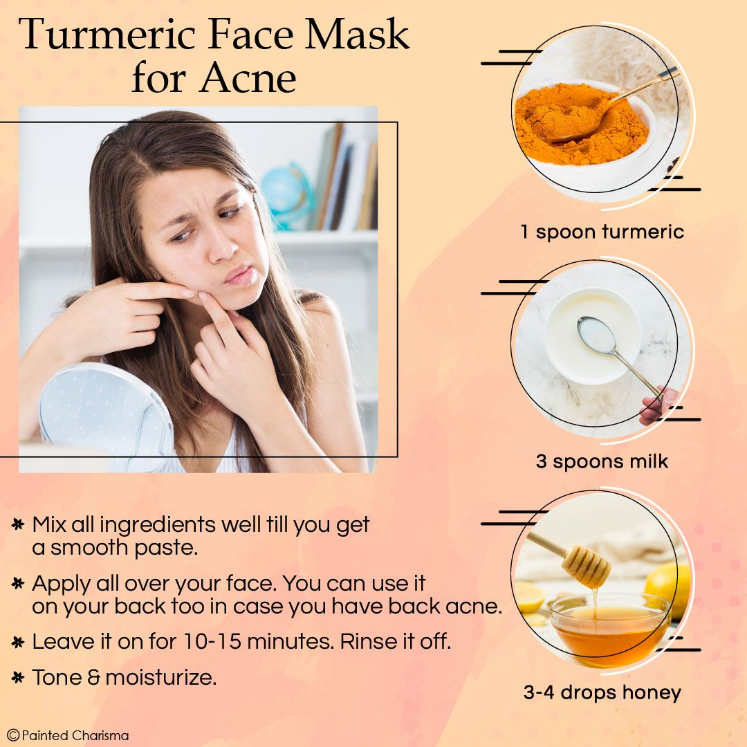Home Remedies for Pimples on Face Fast Home remedies for