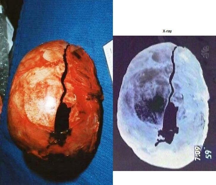 Opinion the Crime scene jonbenet ramsey autopsy