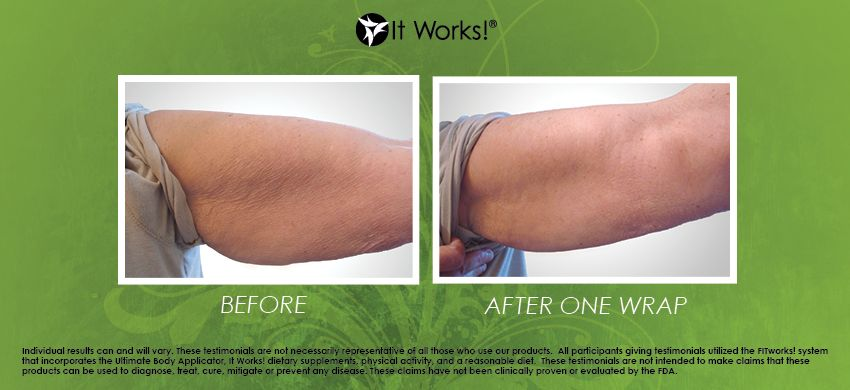 It Works Before And After Arms