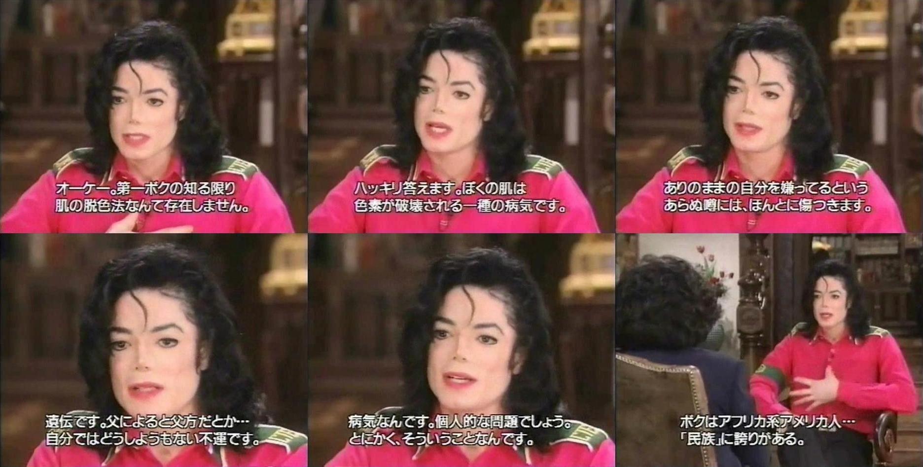 病気 肌 マイケル ジャクソン
