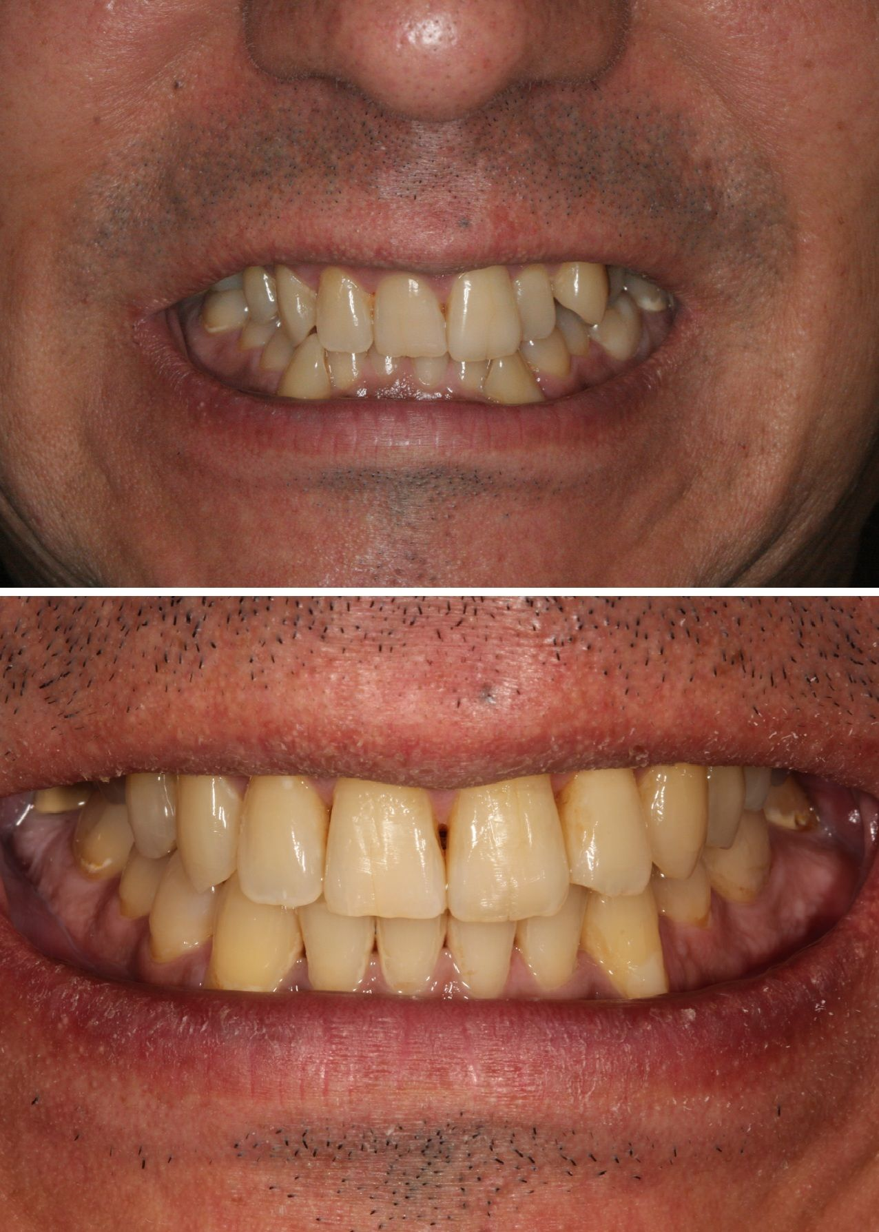 Befor and Agter photos of David's teeth. StraightTeeth