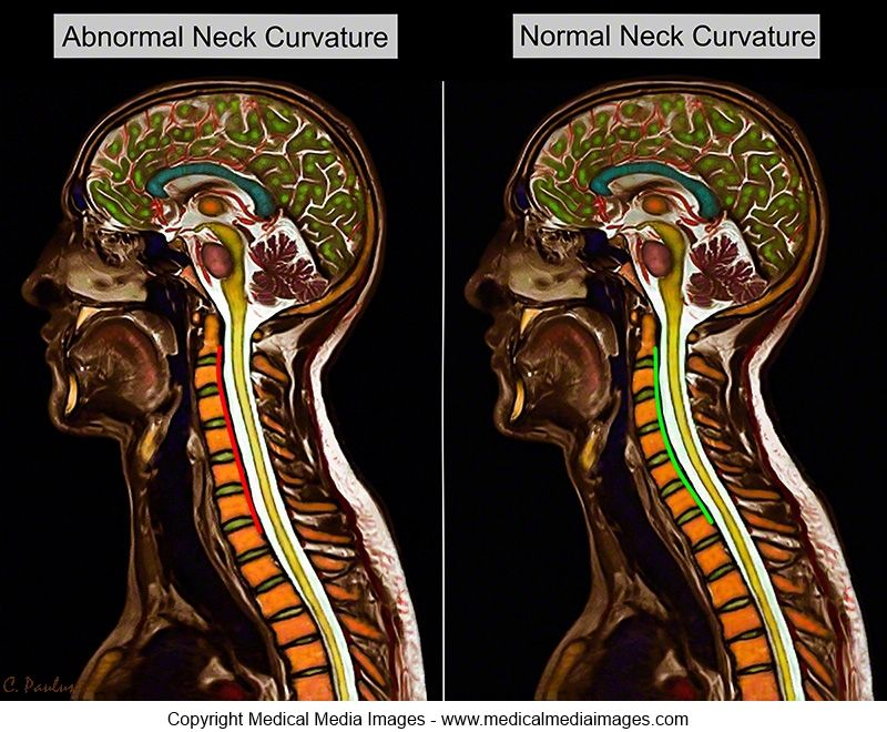 Chiropractic color mri of an abnormal neck curvature and