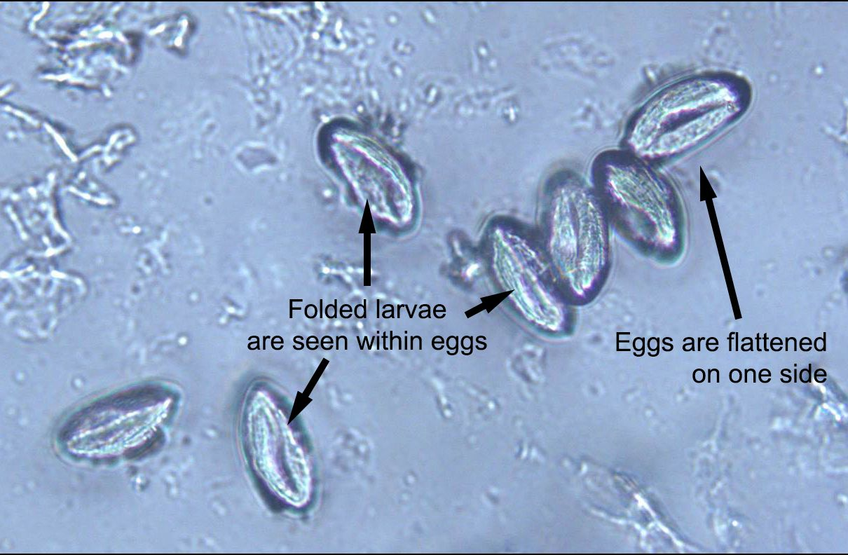 pinworms és giardia)