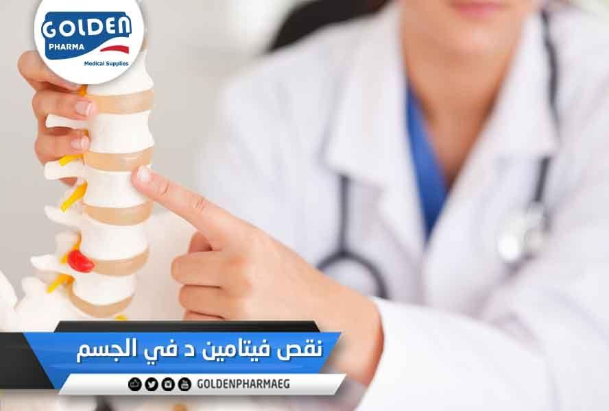 نقص فيتامين د في الجسم يؤدي نقص فيتامين د إلى انخفاض في امتصاص الكالسيوم من الغذاء ونتيجة لذلك يتحر ر الكالسيوم من العظام Medical Supplies Medical Pharma