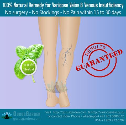 venous insufficiency treatment natural