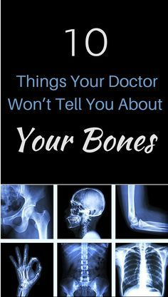38++ What doctor to see for osteoporosis ideas in 2021