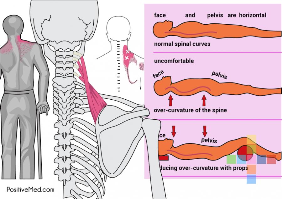 4c6621b8d4801f5499e0fd070818b401 - How To Get A Crick Out Of Your Shoulder