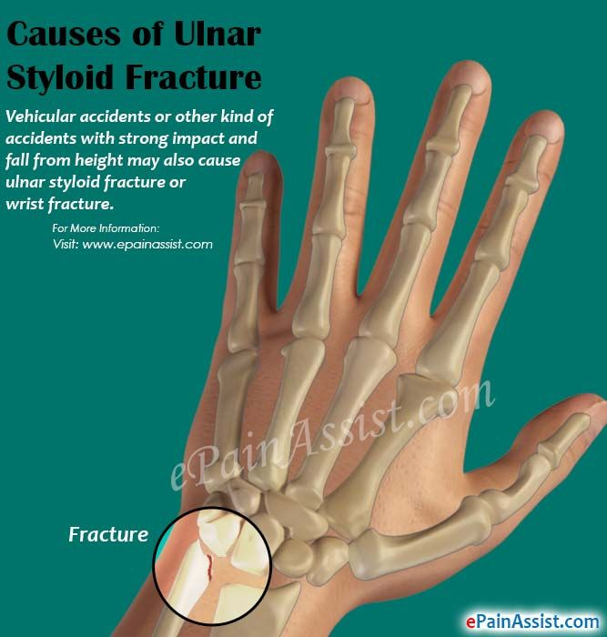 Causes of Ulnar Styloid Fracture
