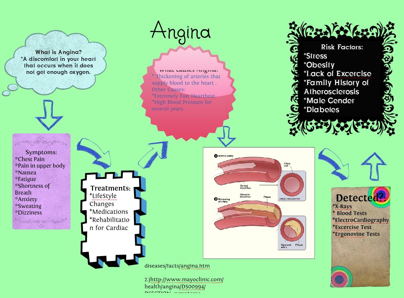 Angina Project for Anatomy & Physiology | Publish with Glogster ...