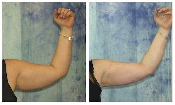 Tickle Lipo (type of PAL) in Arms: Before And After Photos ...
